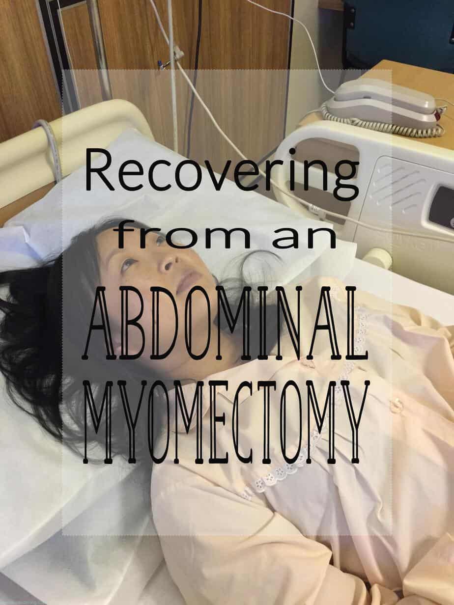 abdominal myomectomy